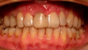 11-Provisional removible pegado la corona cortada de su diente.